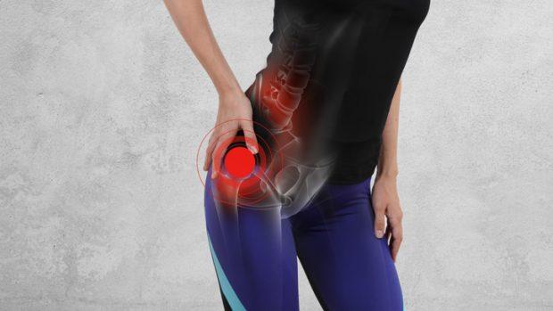 """Trocanterite o borsite trocanterica: quel dolore """"all'anca"""" che con l'anca non c'entra nulla"""
