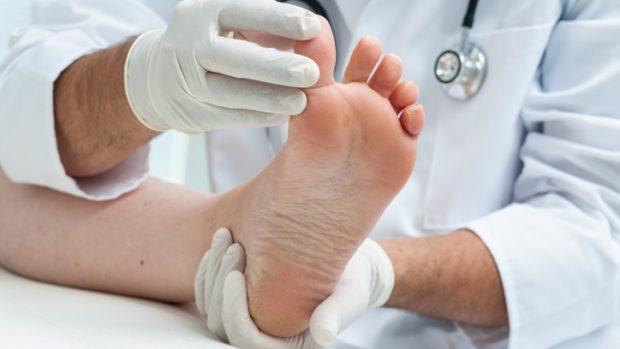 Traumatismi delle unghie negli sportivi: sembrano onicomicosi ma spesso sono onicodistrofie