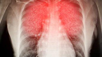 Covid-19, non solo danni ai polmoni: ecco cosa significa