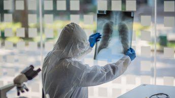 Polmonite interstiziale da Covid-19: ecco cosa cambia rispetto alla normale polmonite