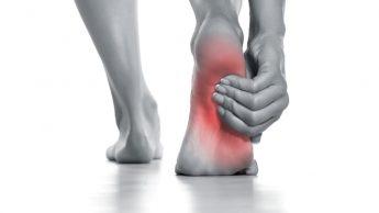 Tallonite o talalgia: quel dolore al piede che ferma la corsa