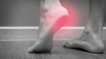 Fascite plantare: il dolore alla pianta del piede che può colpire i runner