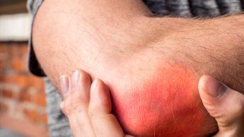 Tendinite e sport: epicondilite, epitrocleite, periartrite... Le tendinopatie più diffuse tra gli sportivi