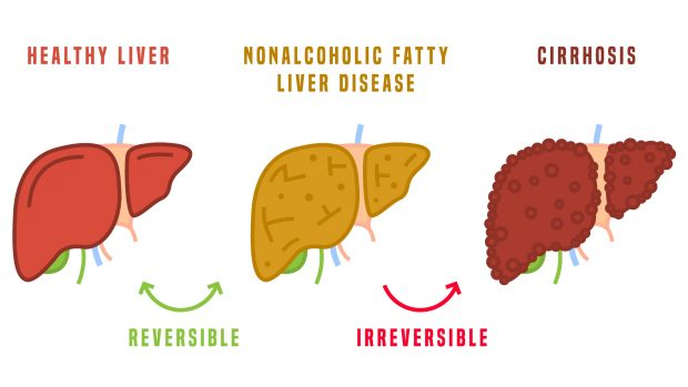 Fegato grasso o steatosi epatica: dieta e sport per prevenirlo e combatterlo