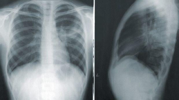 Tumore al polmone sintomi diagnosi e terapia