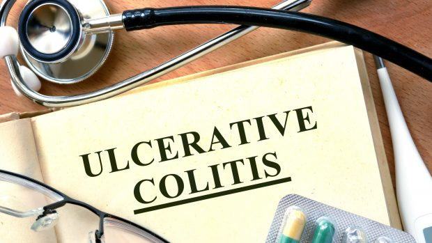 malattie infiammatorie croniche intestinali